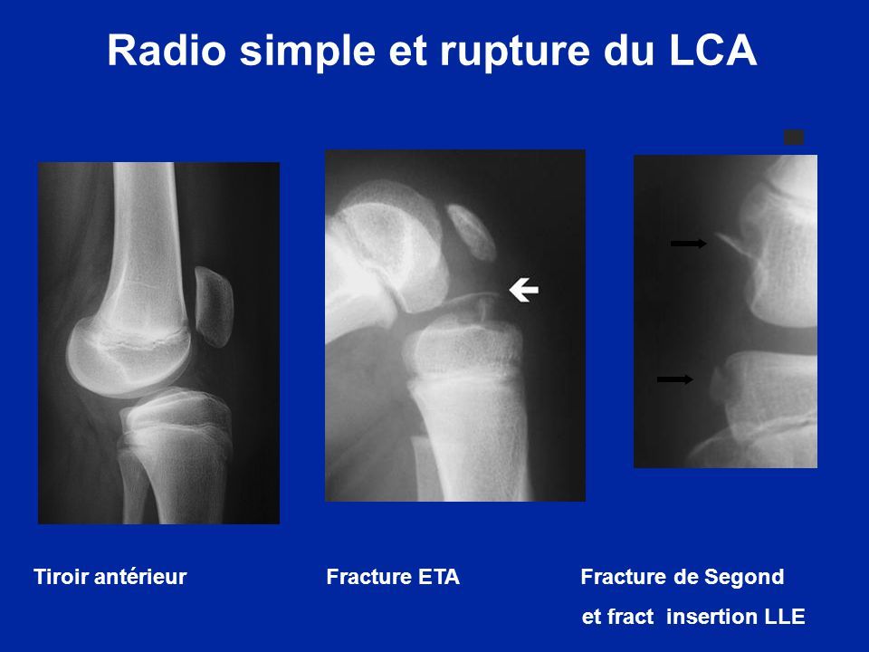Radio simple et rupture du LCA