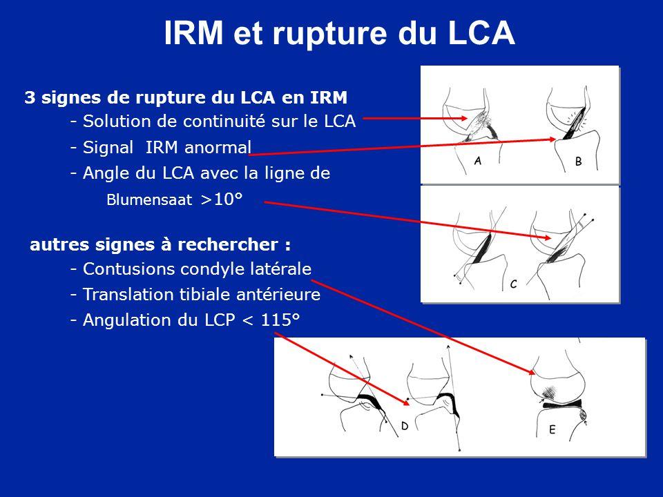 IRM et rupture du LCA 3 signes de rupture du LCA en IRM