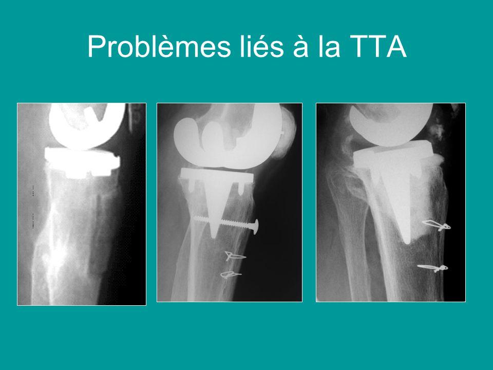 Problèmes liés à la TTA