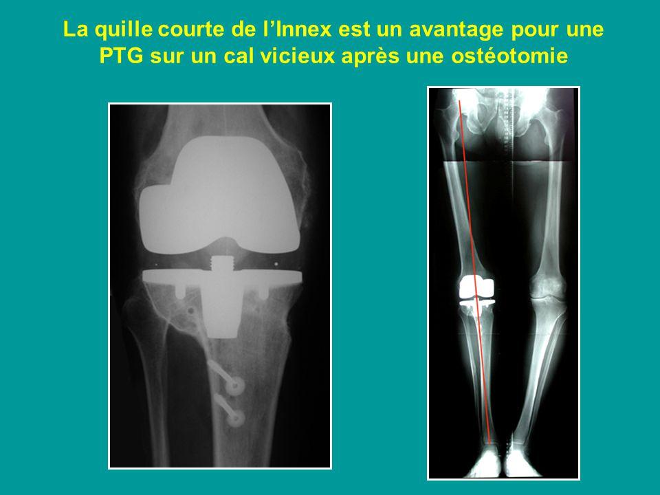 La quille courte de l'Innex est un avantage pour une PTG sur un cal vicieux après une ostéotomie