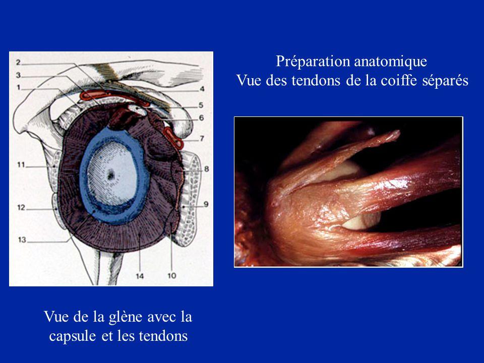 Préparation anatomique Vue des tendons de la coiffe séparés