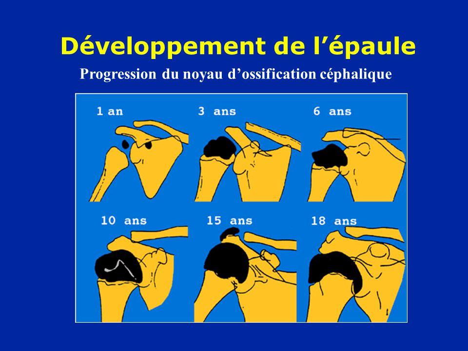 Développement de l'épaule