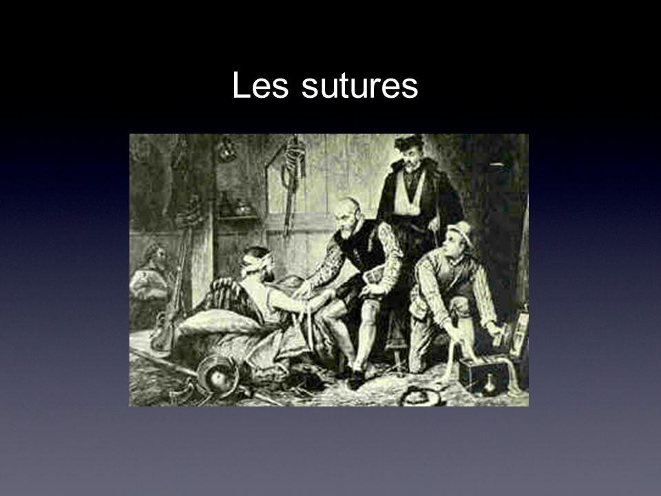 Les sutures