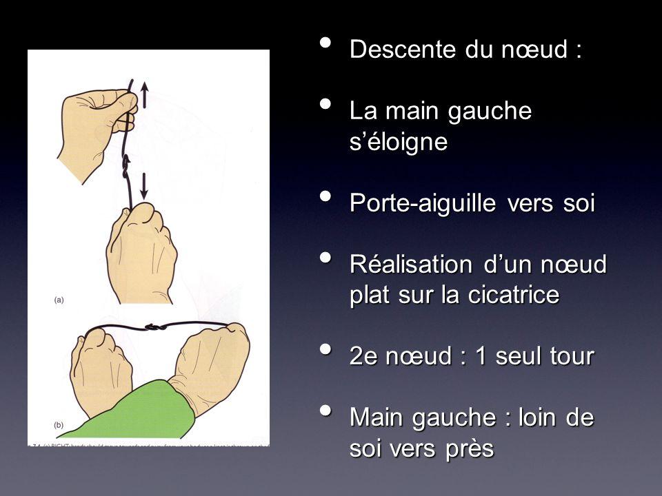 Descente du nœud : La main gauche s'éloigne. Porte-aiguille vers soi. Réalisation d'un nœud plat sur la cicatrice.