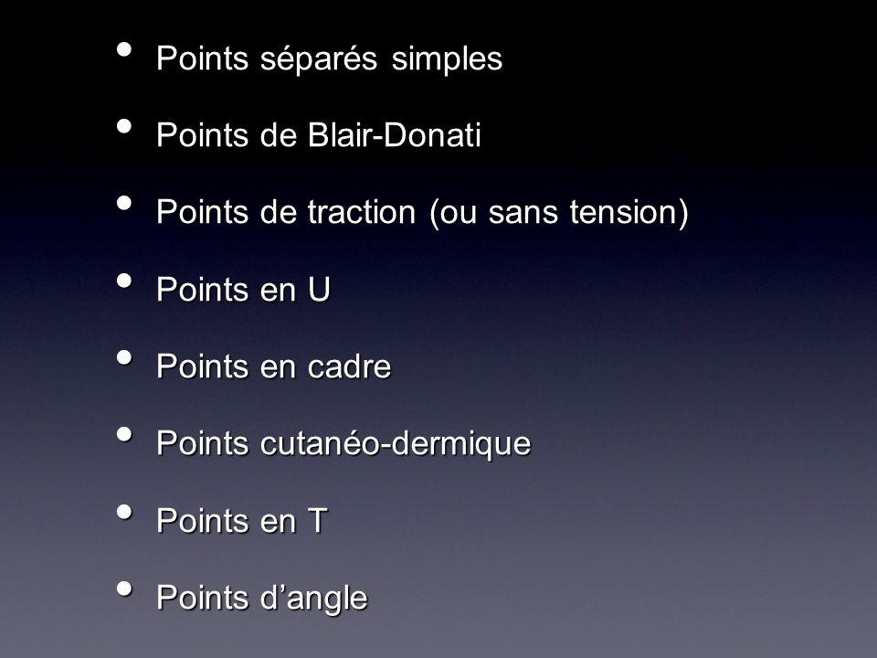 Points séparés simples