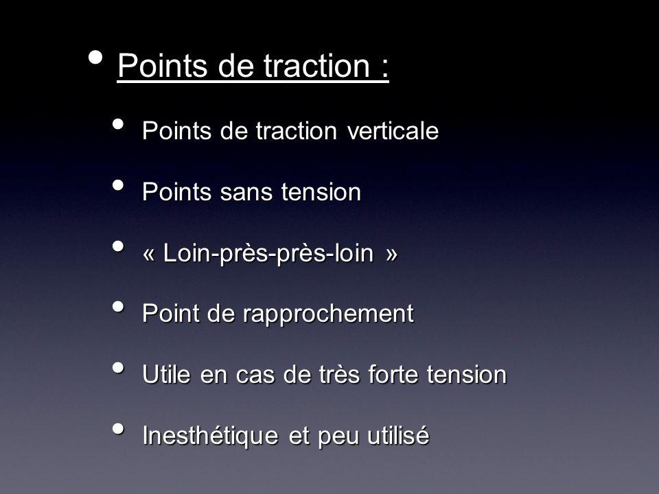 Points de traction : Points de traction verticale Points sans tension