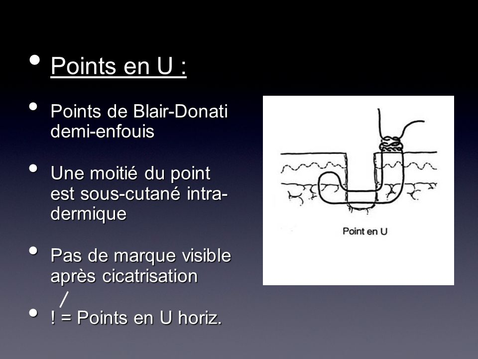 Points en U : Points de Blair-Donati demi-enfouis