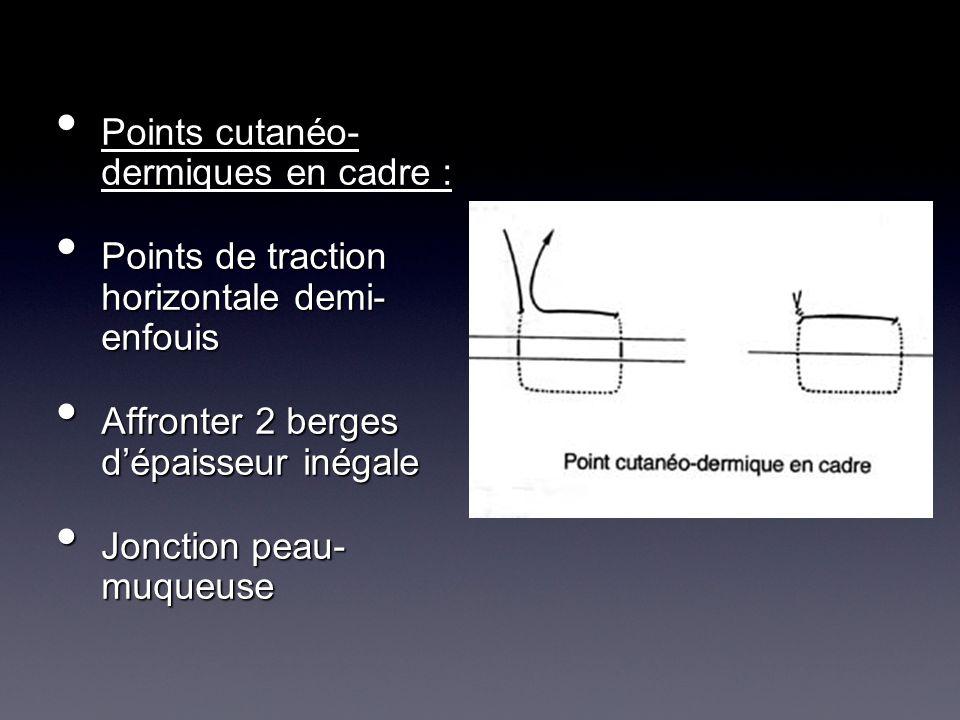 Points cutanéo- dermiques en cadre :