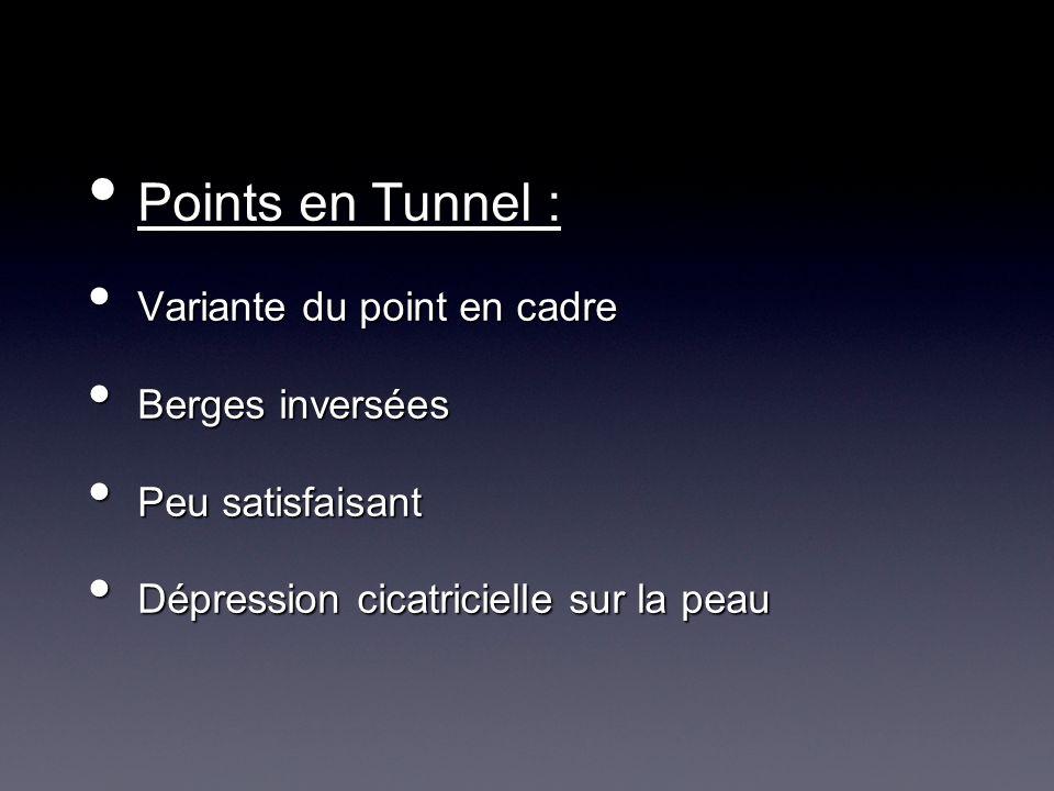 Points en Tunnel : Variante du point en cadre Berges inversées