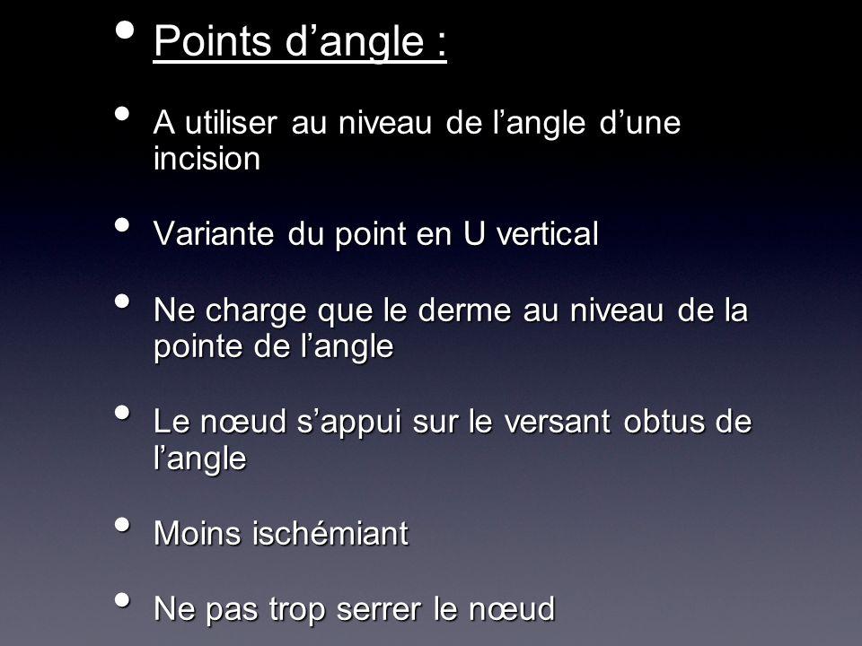 Points d'angle : A utiliser au niveau de l'angle d'une incision
