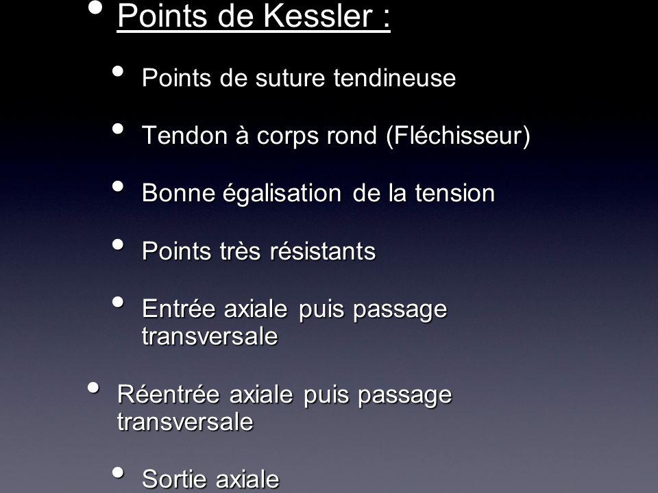 Points de Kessler : Points de suture tendineuse