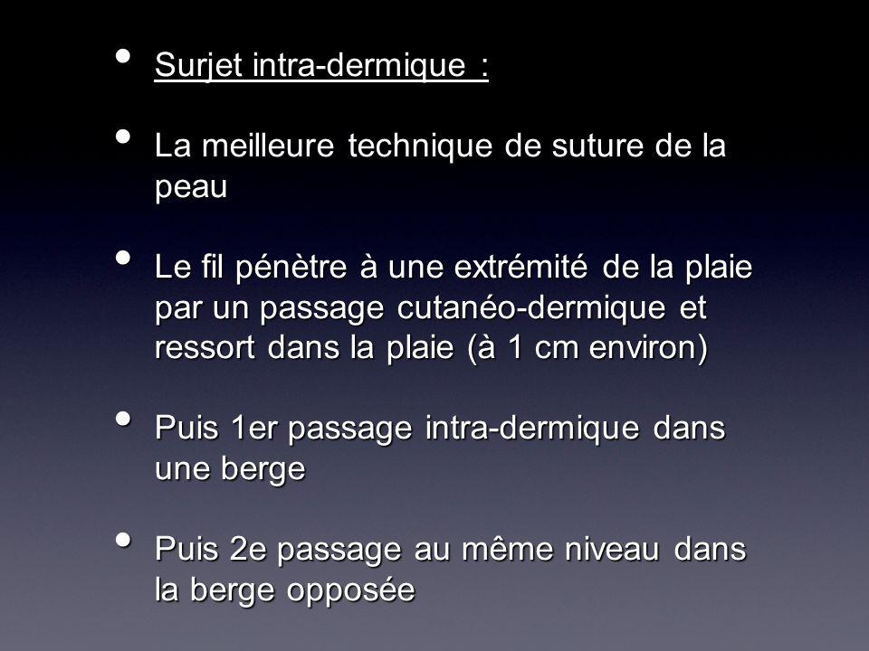 Surjet intra-dermique :