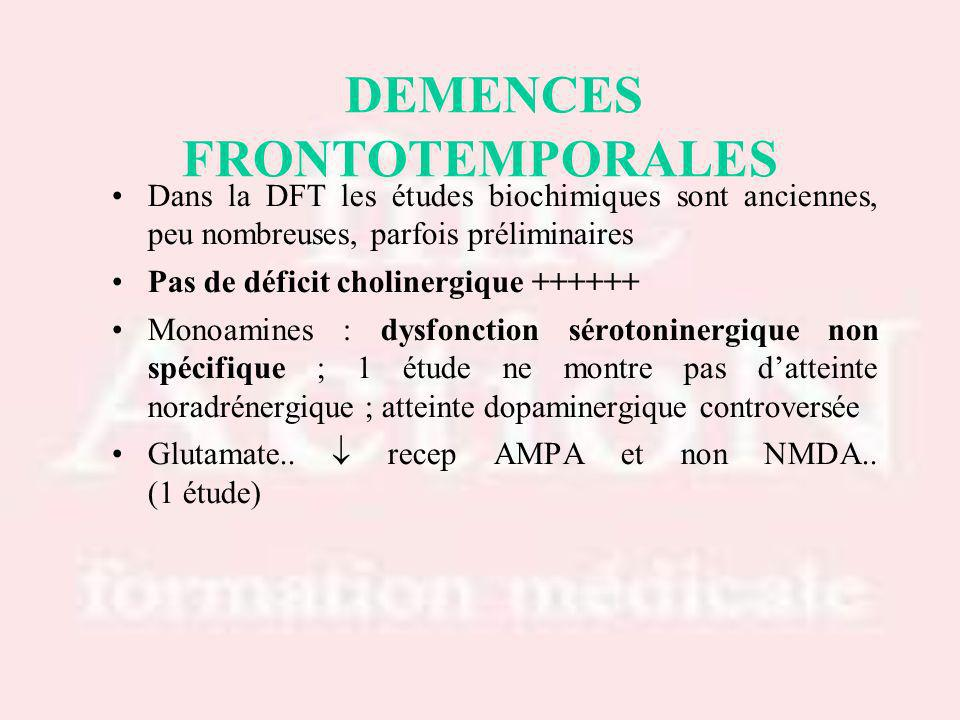 DEMENCES FRONTOTEMPORALES