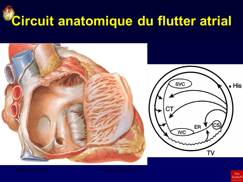 Circuit anatomique du flutter atrial