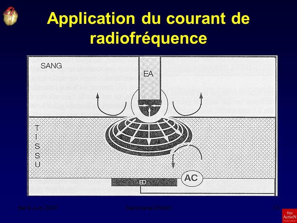Application du courant de radiofréquence