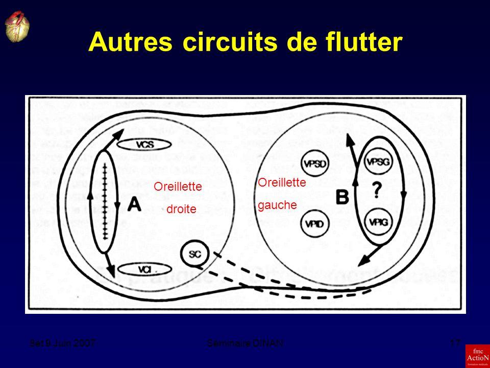 Autres circuits de flutter