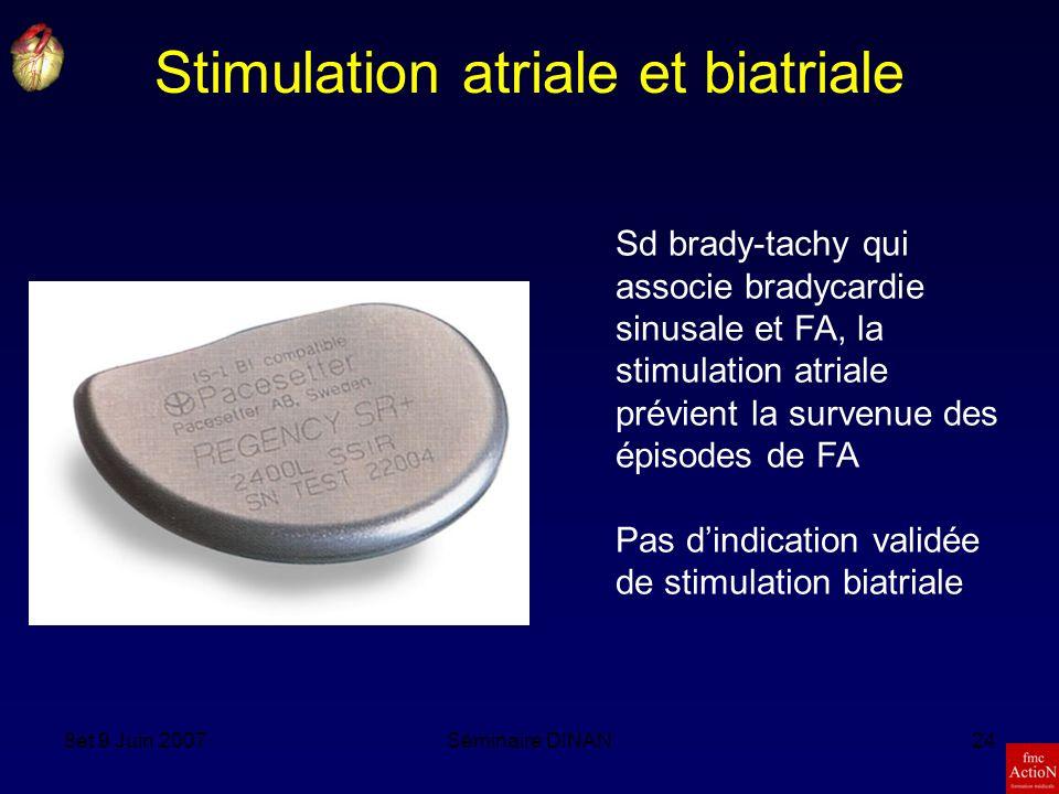 Stimulation atriale et biatriale