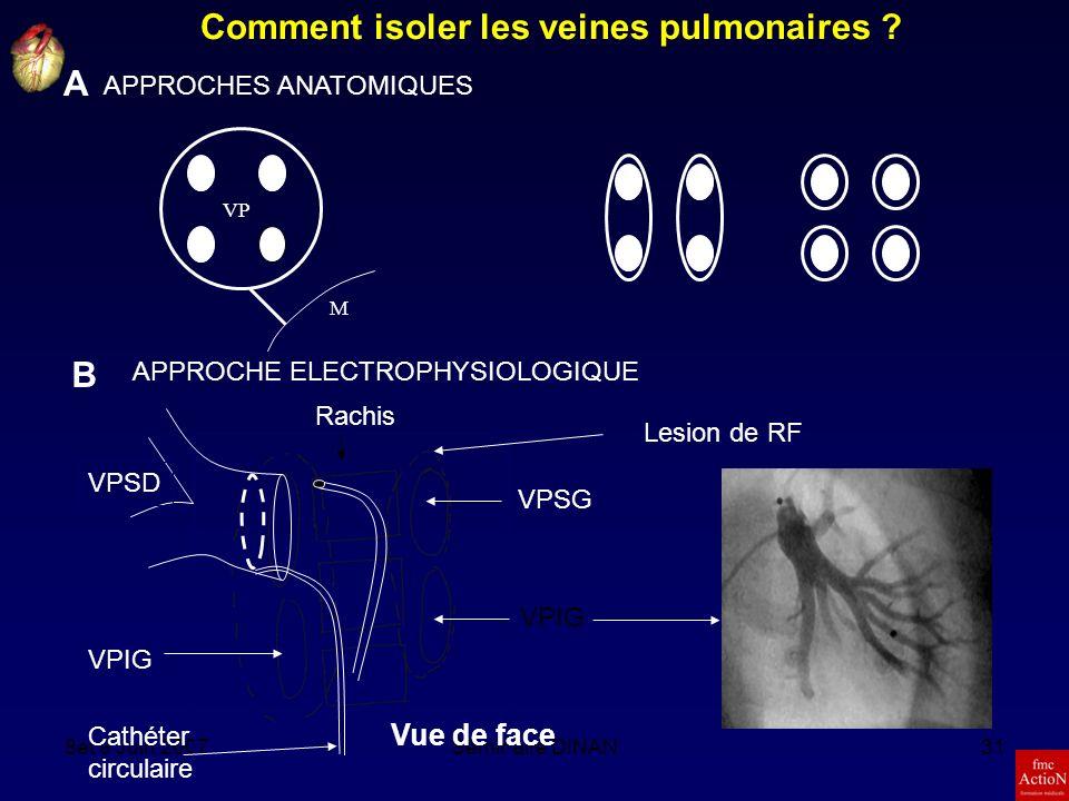 Comment isoler les veines pulmonaires