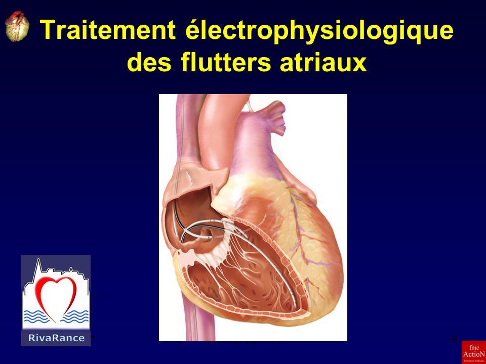 Traitement électrophysiologique des flutters atriaux