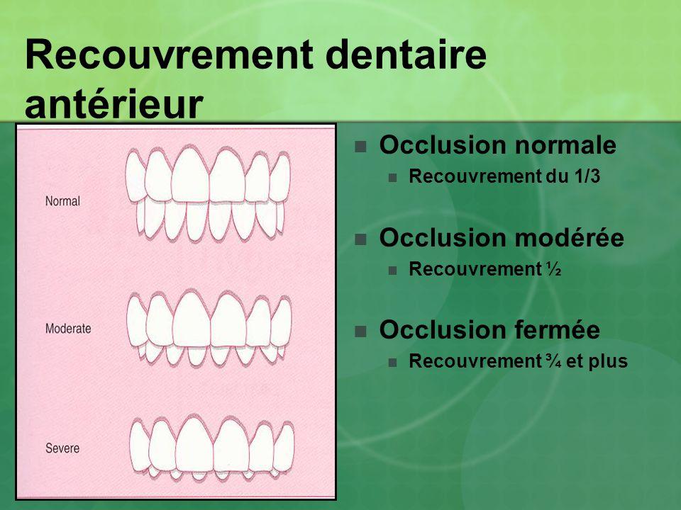 Recouvrement dentaire antérieur