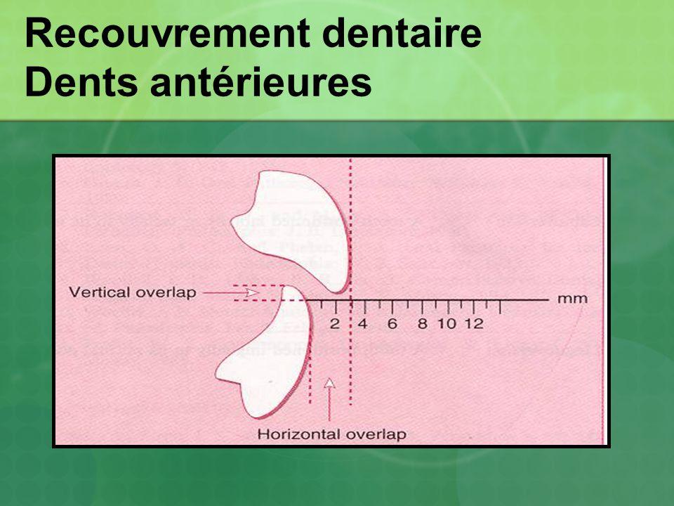 Recouvrement dentaire Dents antérieures
