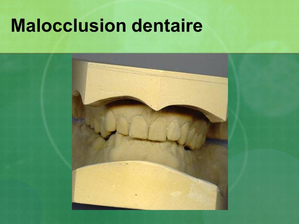 Malocclusion dentaire