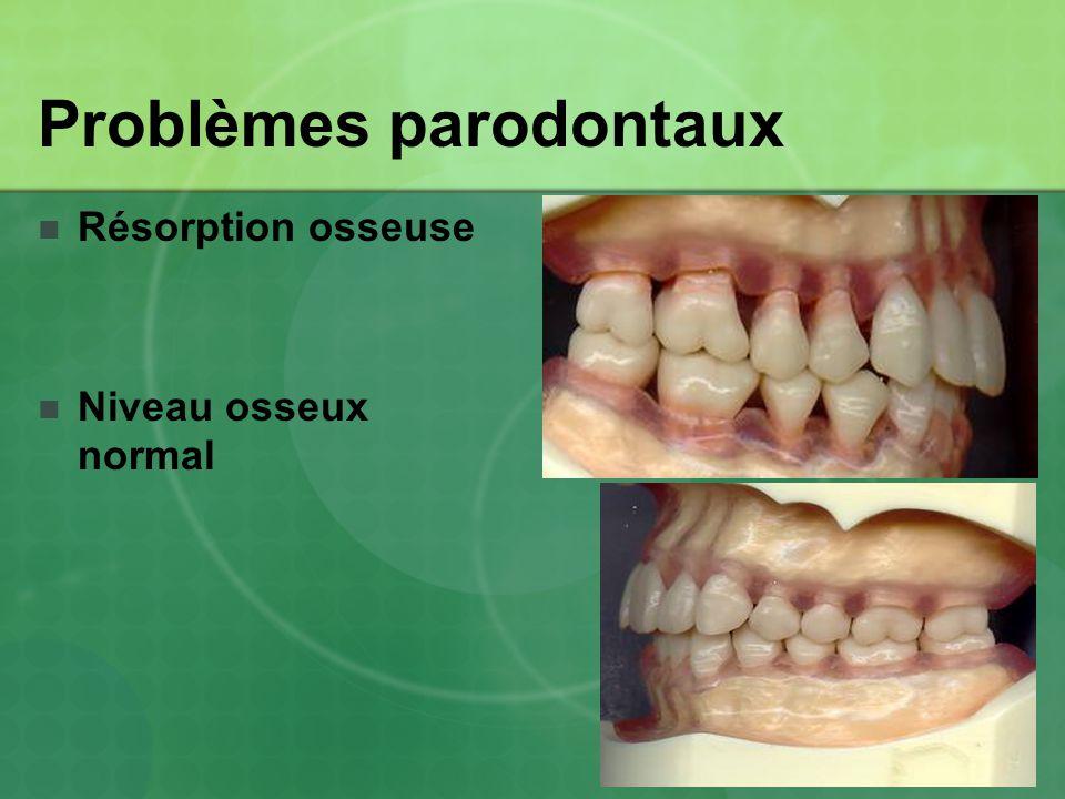Problèmes parodontaux