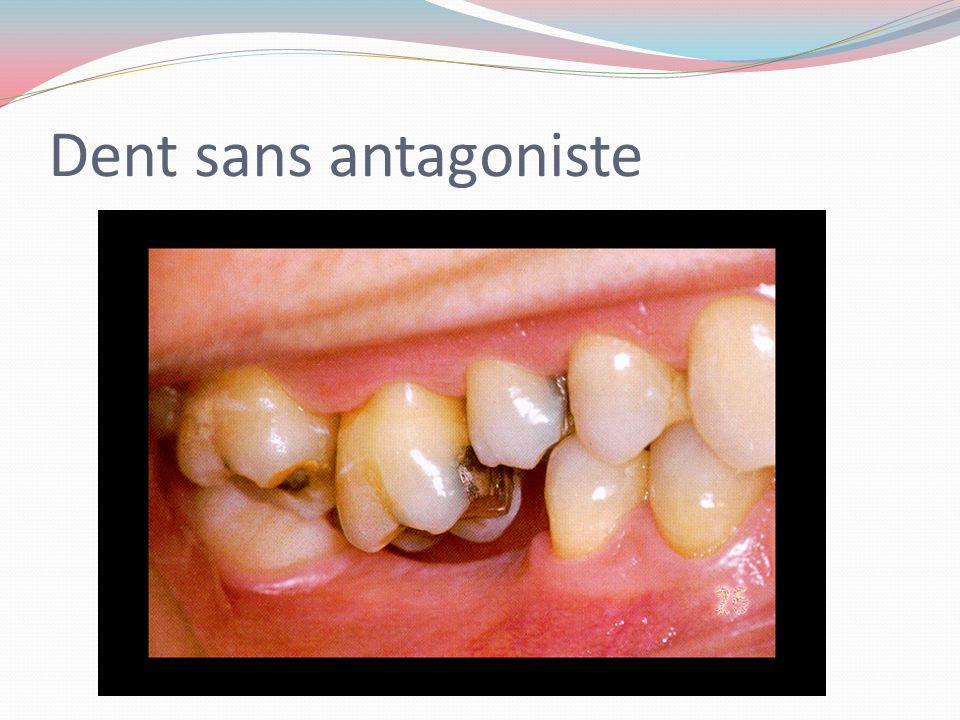 Dent sans antagoniste