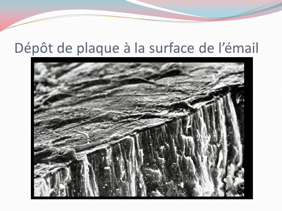 Dépôt de plaque à la surface de l'émail