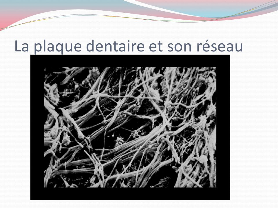 La plaque dentaire et son réseau