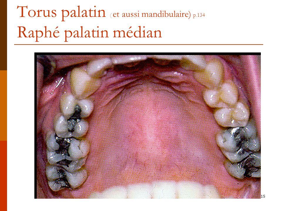 Torus palatin ( et aussi mandibulaire) p.134 Raphé palatin médian