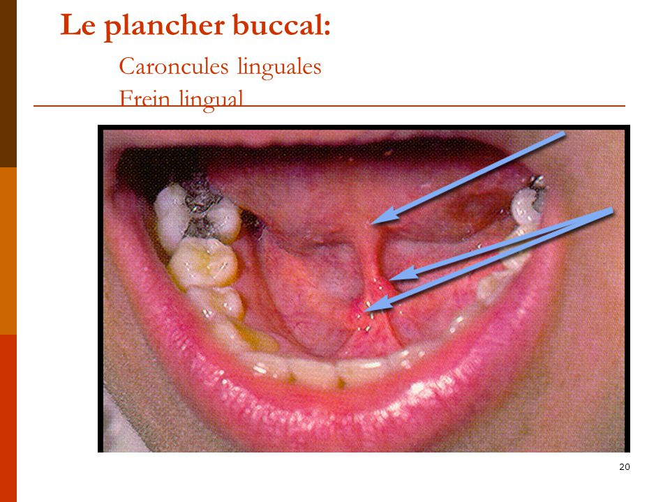Le plancher buccal: Caroncules linguales Frein lingual