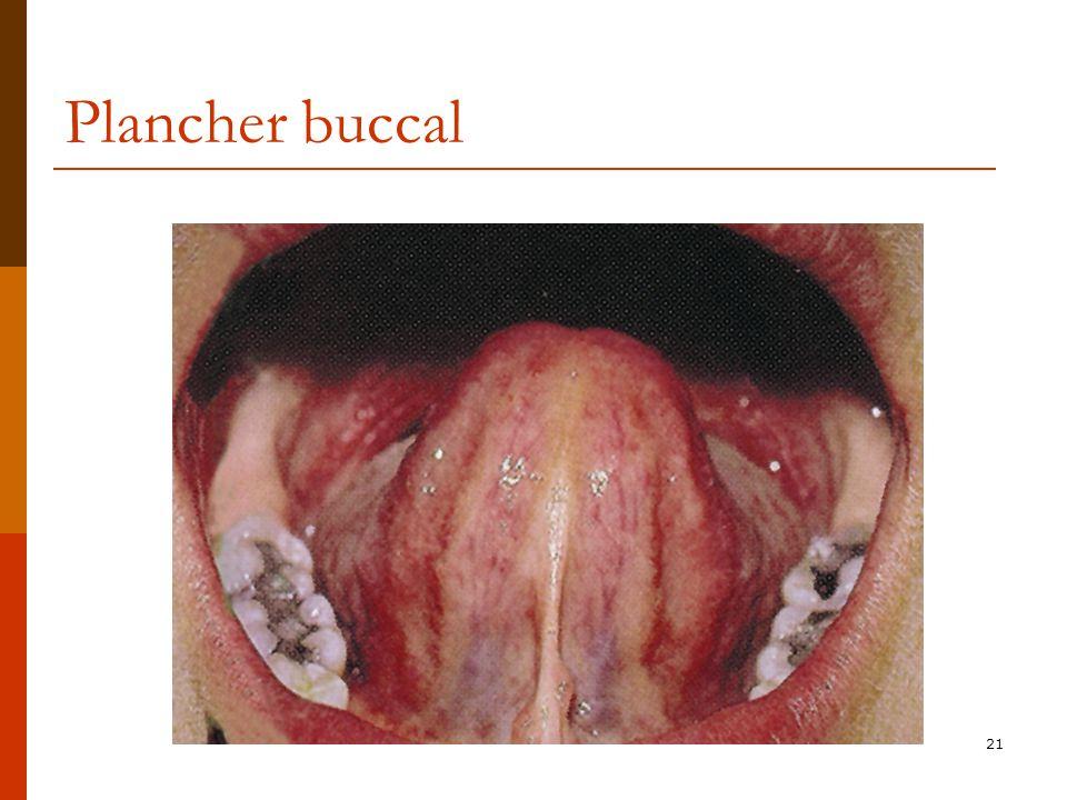 Plancher buccal