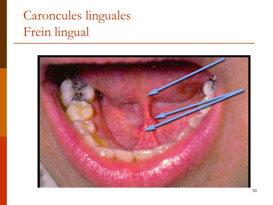 Caroncules linguales Frein lingual