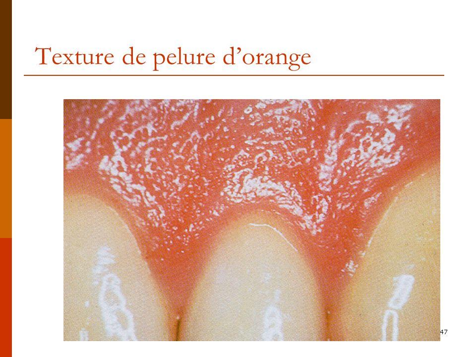 Texture de pelure d'orange