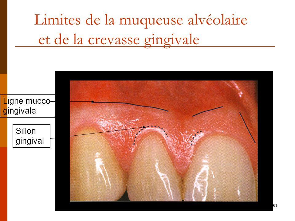 Limites de la muqueuse alvéolaire et de la crevasse gingivale