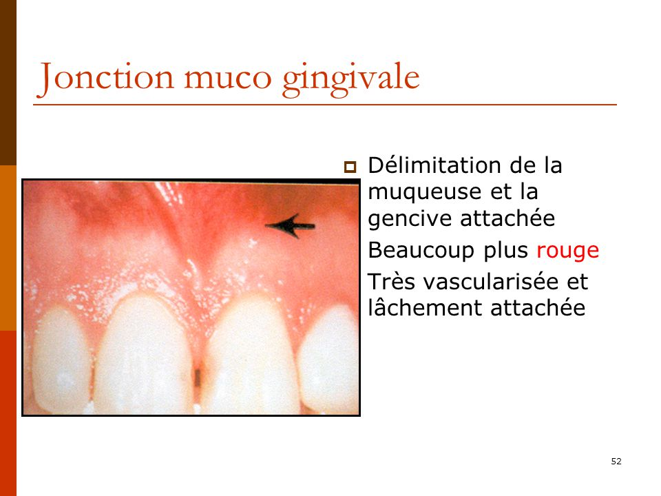 Jonction muco gingivale