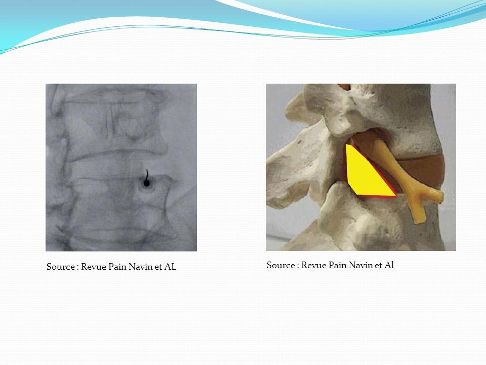 Source : Revue Pain Navin et AL
