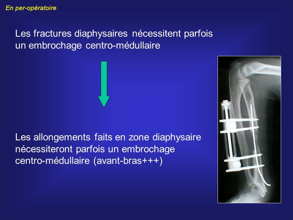 En per-opératoire Les fractures diaphysaires nécessitent parfois un embrochage centro-médullaire.