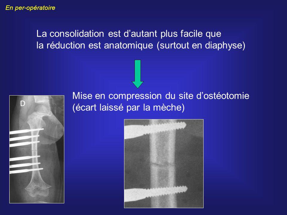Mise en compression du site d'ostéotomie (écart laissé par la mèche)