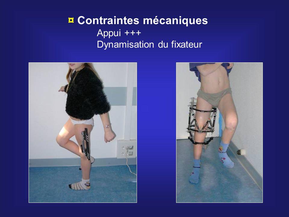 ¤ Contraintes mécaniques