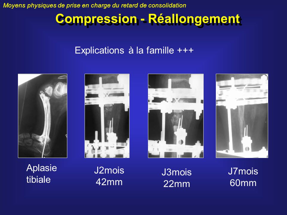Compression - Réallongement