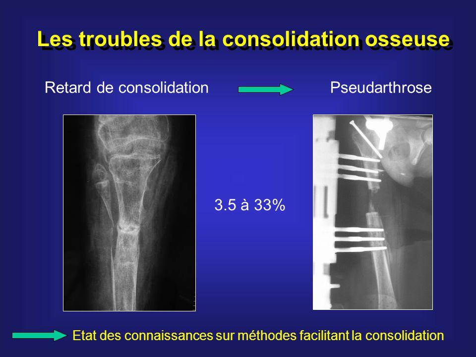 Les troubles de la consolidation osseuse