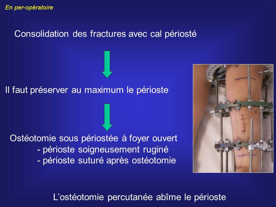 Consolidation des fractures avec cal périosté