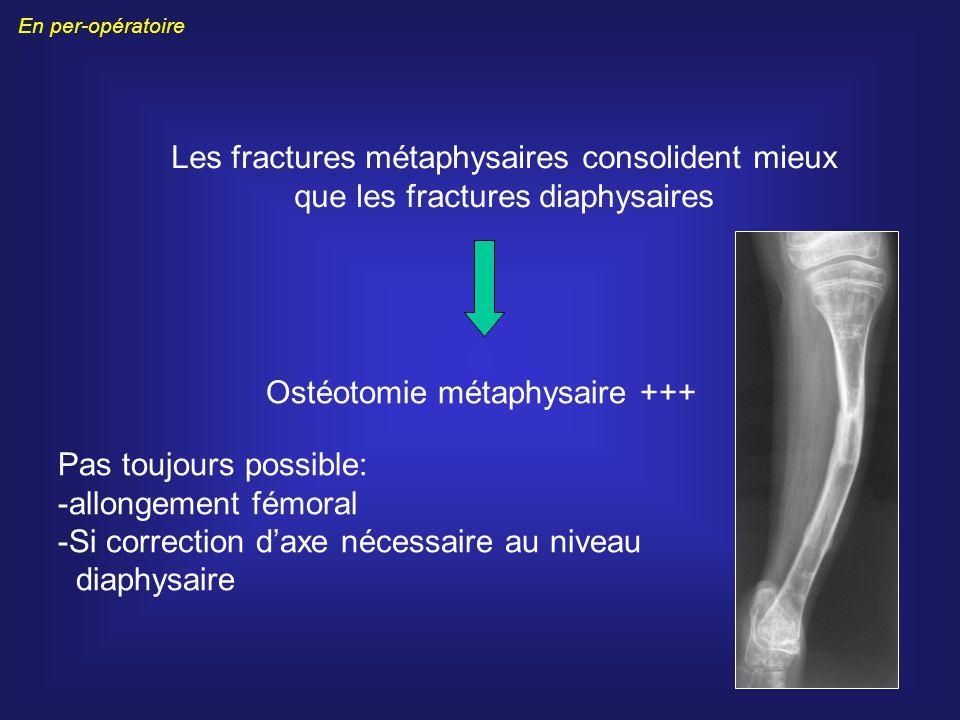 Ostéotomie métaphysaire +++