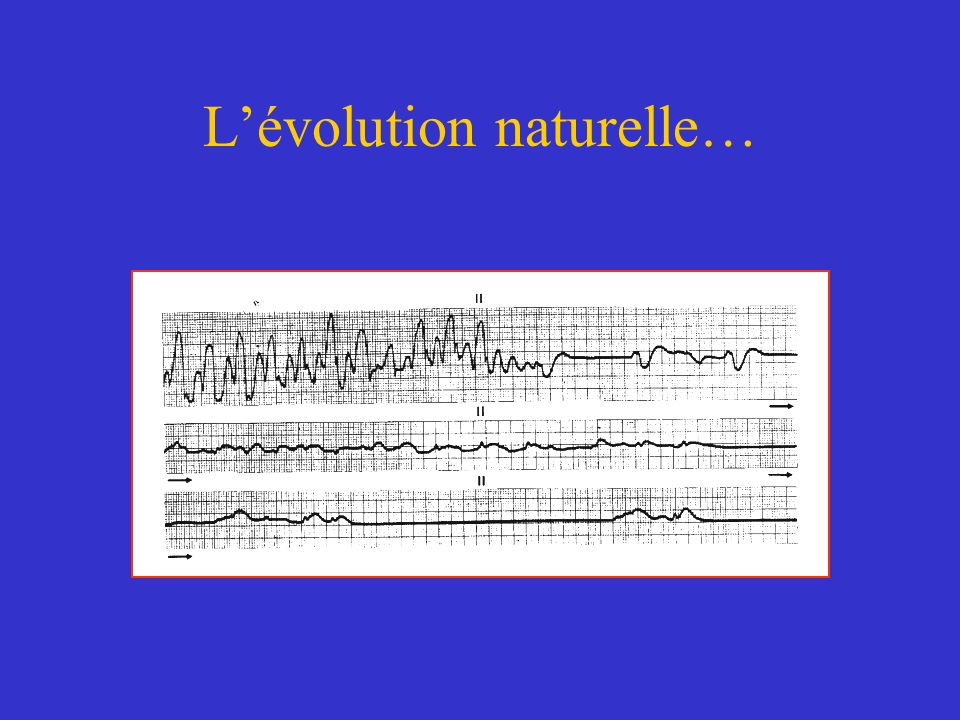 L'évolution naturelle…