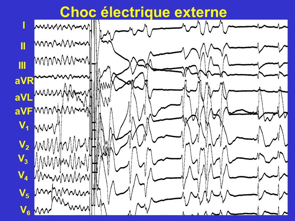 Choc électrique externe