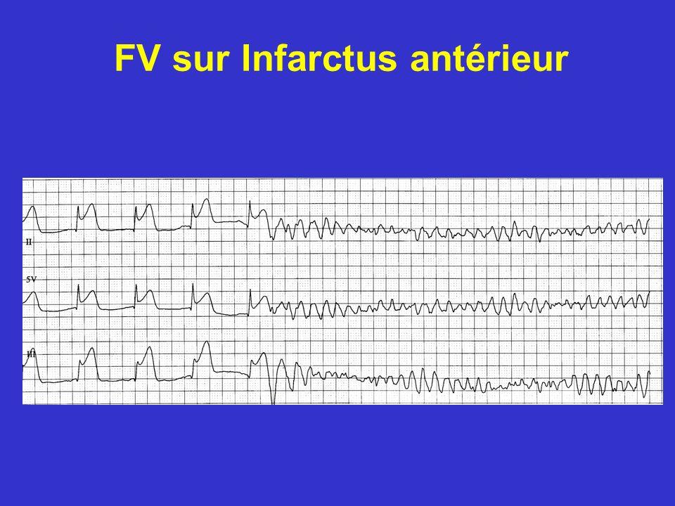 FV sur Infarctus antérieur