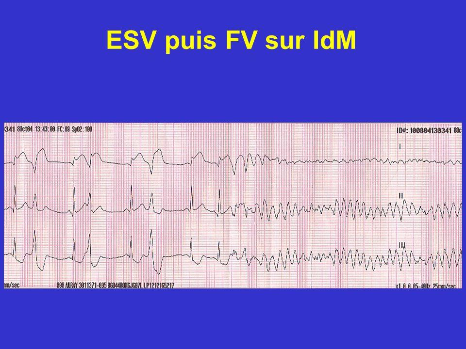 ESV puis FV sur IdM