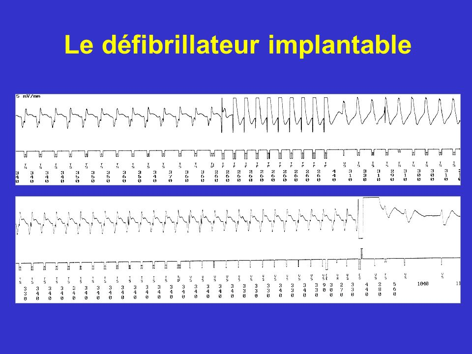 Le défibrillateur implantable